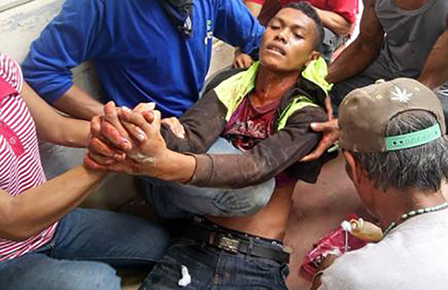 A farmer wounded in the violent dispersal in Kidapawan City is helped by his fellow protesters. Image: Interaksyon/Kilab Multimedia