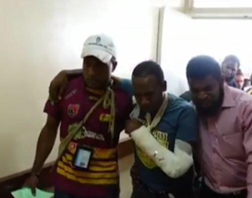 A wounded student after treatment for gunshot wounds yesterday in the confrontation between police and students at the University of PNG. Reports today said 23 people had been wounded or injured. Image: EMTV News