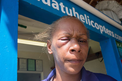 Florence Lengkon as she appeared after the brutal assault against her on March 13. Image: Dan McGarry/Vanuatu Daily Post