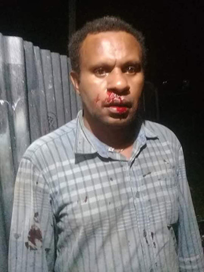 A Papuan freelance journalist John Pakage, who was reportedly beaten by members of the Indonesian Mobile Brigade Corps and his family threatened. Image: Wenslaus